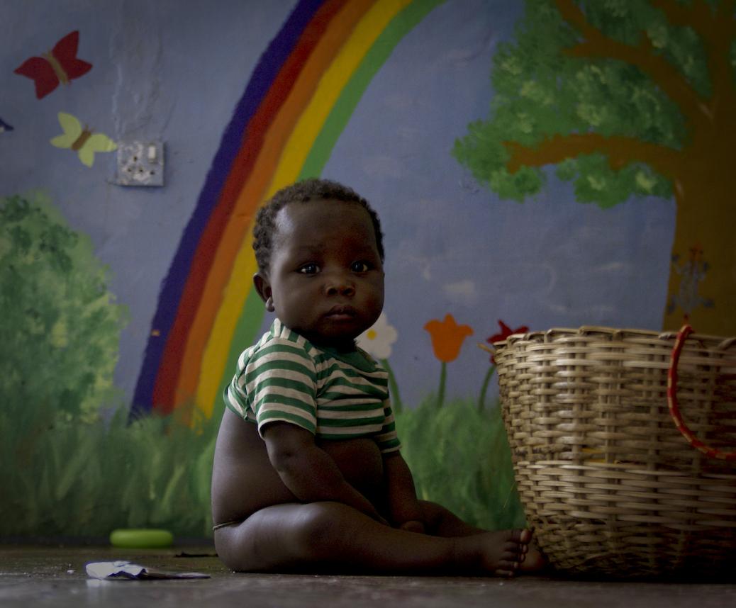 malnutrition sierra leone masanga children